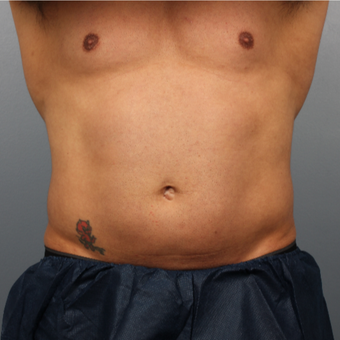 39 year old man treated with CoolSculpting to the abdomen and flanks before 3507332