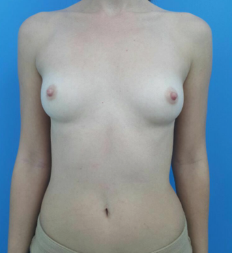 25-34 year old woman treated with Breast Augmentation before 2997939
