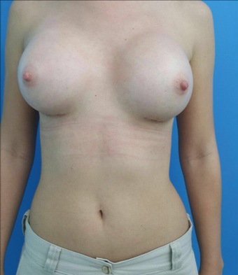 25-34 year old woman treated with Breast Augmentation after 2997939