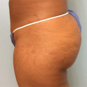 18-24 year old woman treated with Butt Lift after 3726017