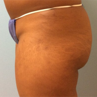 18-24 year old woman treated with Butt Lift before 3726017