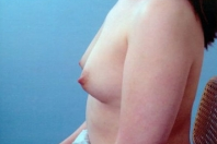 Breast Augmentation before 3446183
