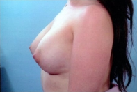 Breast Augmentation after 3446183