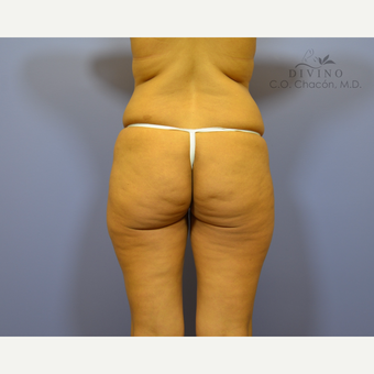 35-44 year old woman treated with Brazilian Butt Lift before 3418905