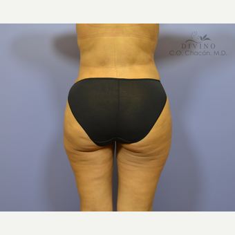 35-44 year old woman treated with Brazilian Butt Lift after 3418905