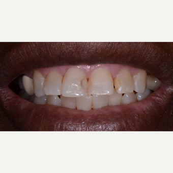 55-64 year old woman treated with Dental Bonding