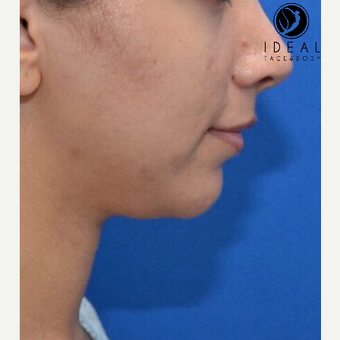 25-34 year old woman treated with Laser Liposuction before 3613540