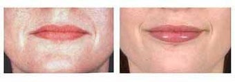 Lip Augmentation with Fat injection before 6434