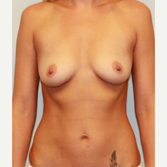 25-34 year old woman treated with Breast Implants before 3549683