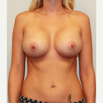 25-34 year old woman treated with Breast Implants after 3549683