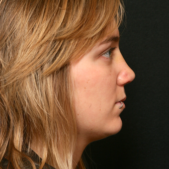 25-34 year old woman treated with Revision Rhinoplasty after 3136725