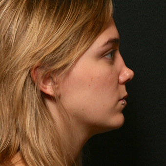 25-34 year old woman treated with Revision Rhinoplasty before 3136725