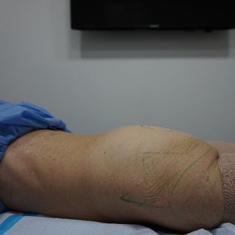 55-64 year old woman treated with Liposuction Revision before 2610117