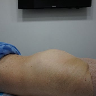 55-64 year old woman treated with Liposuction Revision after 2610117