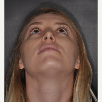 18-24 year old woman treated with Rhinoplasty 1 year post-op after 3499778