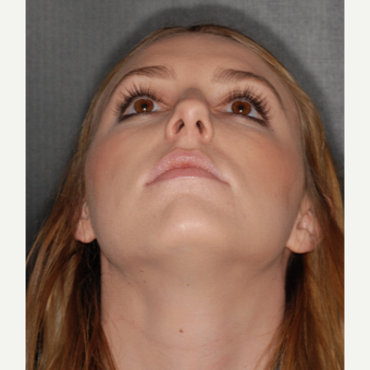 18-24 year old woman treated with Rhinoplasty 1 year post-op before 3499778