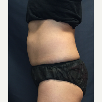 35-44 year old woman treated with SculpSure before 3725453