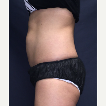 35-44 year old woman treated with SculpSure after 3725453