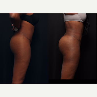 25-34 year old woman treated with Brazilian Butt Lift before 3658869
