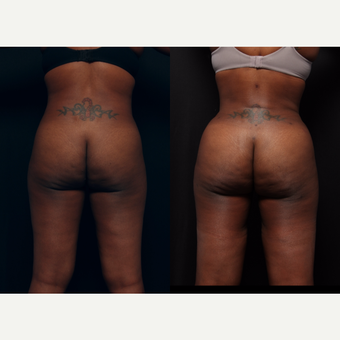 25-34 year old woman treated with Brazilian Butt Lift after 3658869