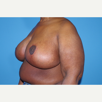 55-64 year old woman treated with Breast Reduction after 2998945