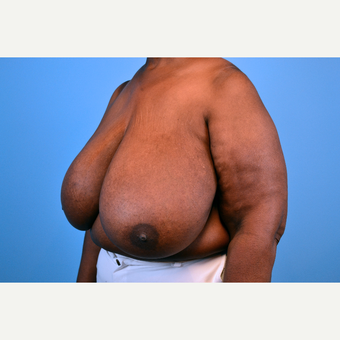 55-64 year old woman treated with Breast Reduction before 2998945