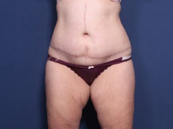 45-54 year old woman treated with Tummy Tuck after 2728221