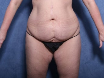 45-54 year old woman treated with Tummy Tuck before 2728221