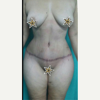 45-54 year old woman treated with Tummy Tuck after 3515975