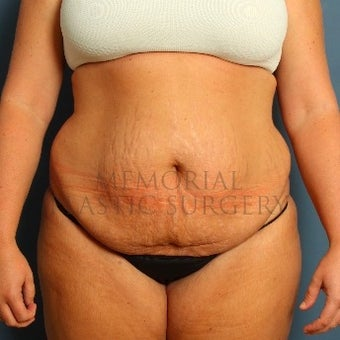 Woman treated with Tummy Tuck before 2652473
