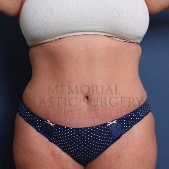 Woman treated with Tummy Tuck after 2652473