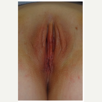 25-34 year old woman treated with Labiaplasty after 3187458