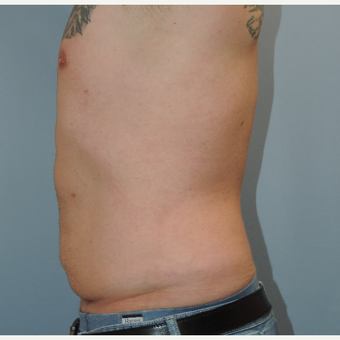 35-44 year old man treated with Vaser Liposuction after 3448672