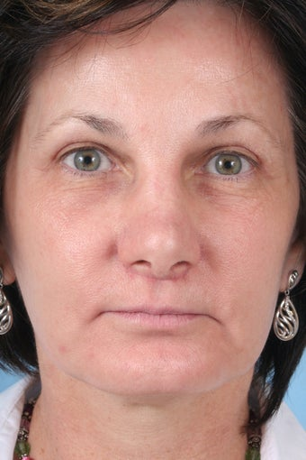 Facelift, chin implant, liplift after 414953