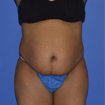 35-44 year old woman treated with No-Drain Tummy Tuck before 2975014