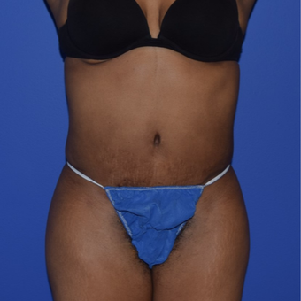 35-44 year old woman treated with No-Drain Tummy Tuck after 2975014