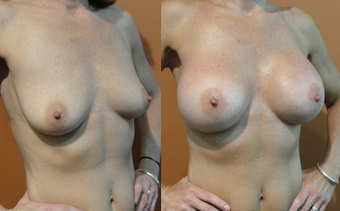 Breast Implants before 974266