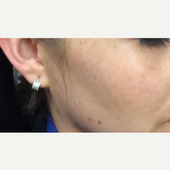 25-34 year old woman treated with PicoSure Skin Revitalization after 3246785