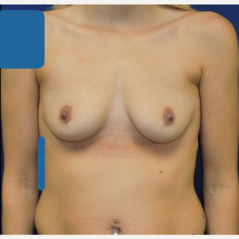 25-34 year old woman treated with Breast Augmentation before 3783320