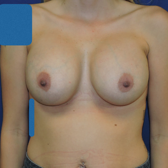 25-34 year old woman treated with Breast Augmentation after 3783320