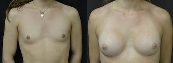 MTF Breast Augmentation before 3004776