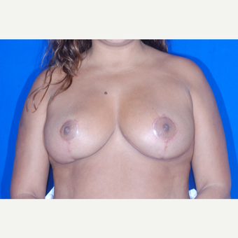 35-44 year old woman treated with Breast Reduction after 3695511