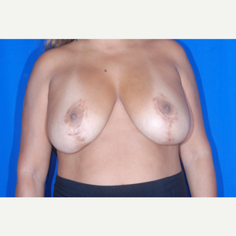 35-44 year old woman treated with Breast Reduction before 3695511