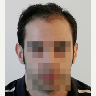 25-34 year old man treated with FUE Hair Transplant before 3068866
