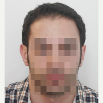 25-34 year old man treated with FUE Hair Transplant after 3068866