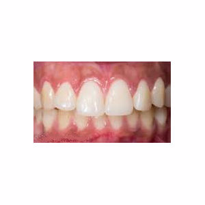 Short teeth treated treated with Gum Lift after 3696376