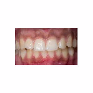 Short teeth treated treated with Gum Lift before 3696376