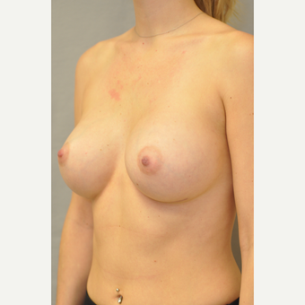 25-34 year old woman treated with Breast Augmentation after 3412436