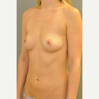 25-34 year old woman treated with Breast Augmentation before 3412436