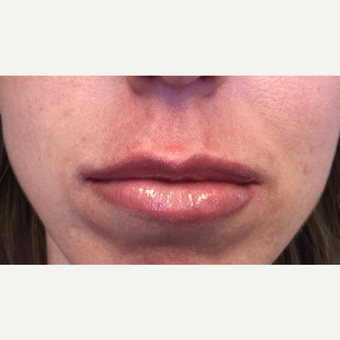 25-34 year old woman treated with Lip Augmentation after 3425093